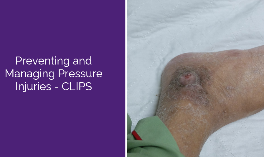 Preventing and Managing Pressure Injuries