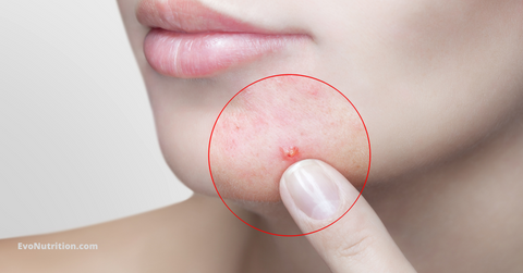 acne - which vitamin is good for skin