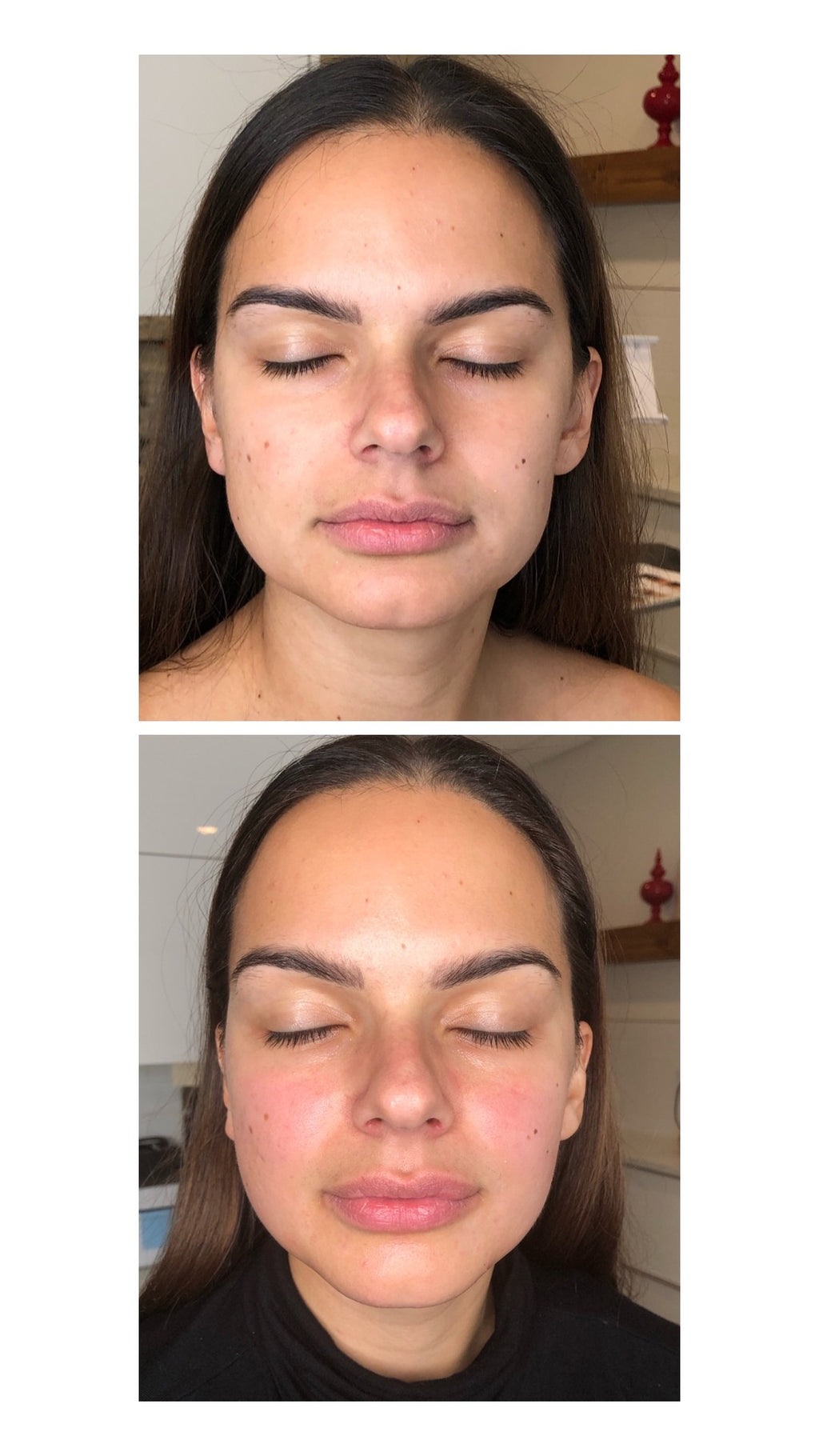 Sculptural Face Lifting method