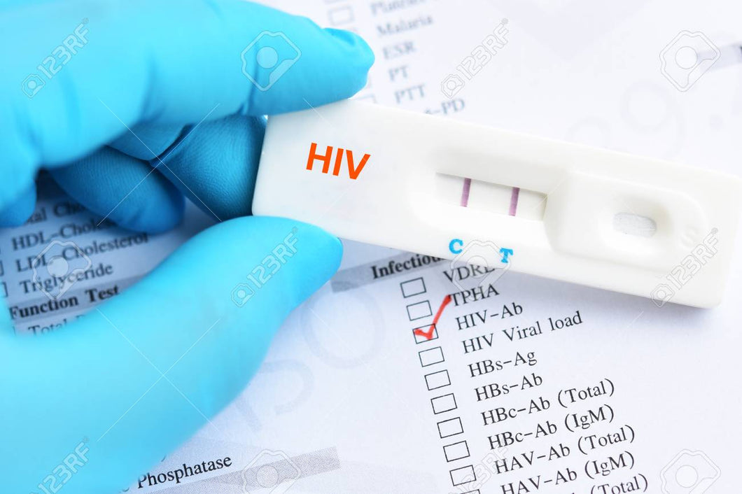 HIV Rapid Test