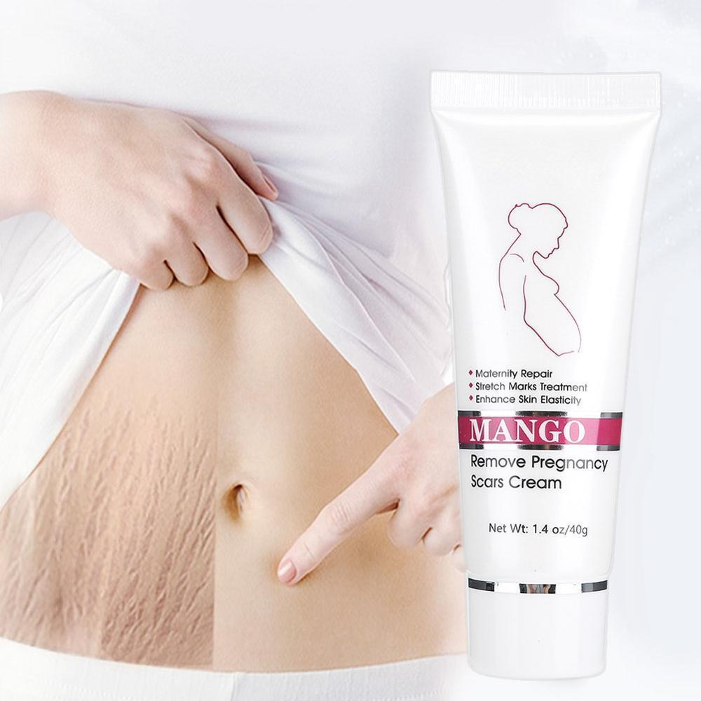 Maternity Stretch Marks Removal Cream - Broadwaytrending Shop
