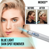 MEDICO™ Blue Light Skin Spot Remover - Broadwaytrending Shop