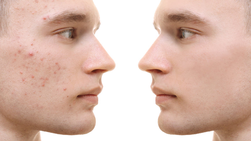 Targeting Types of Acne with the Right Ingredients