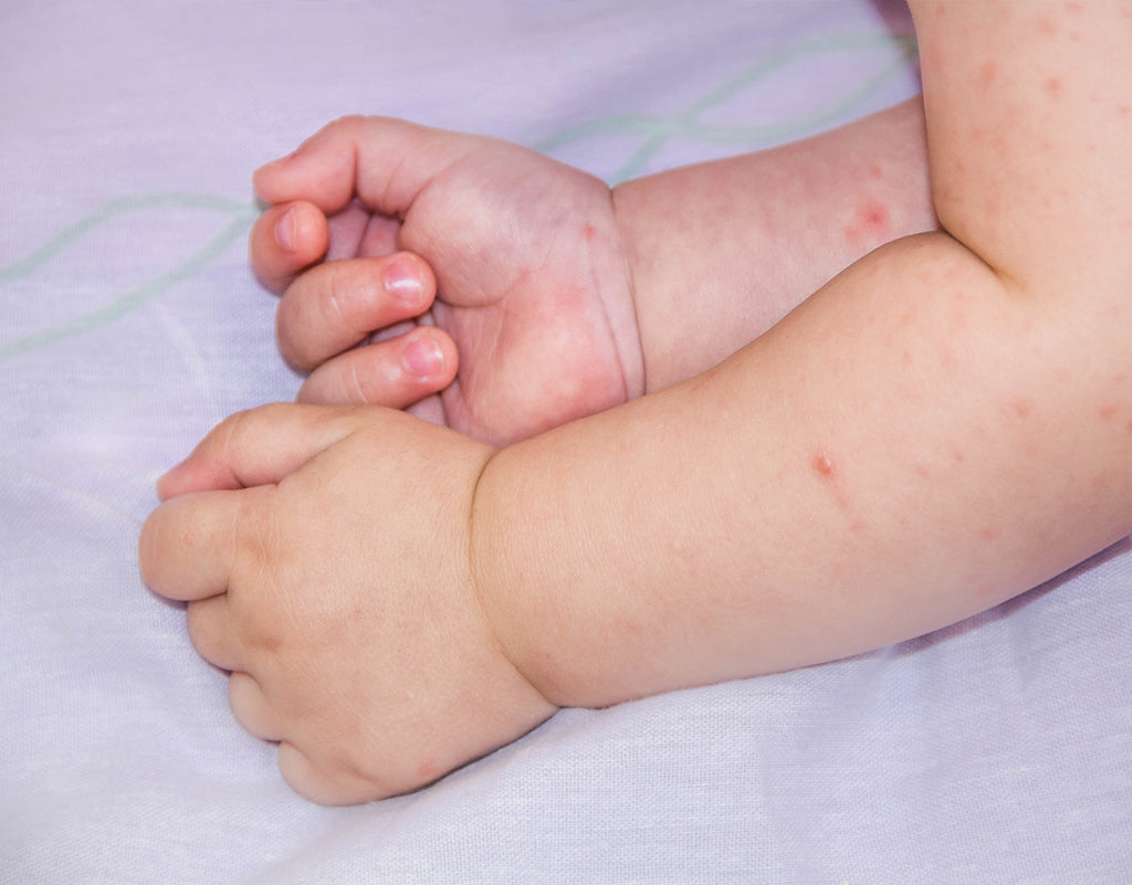 baby's arms with contact dermatitis