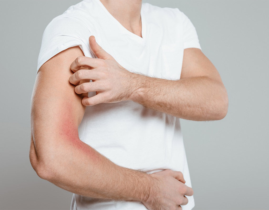 Man scratching his arm that has eczema