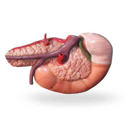 disease summary pancreatitis Summary most commonly associated with chronic alcohol ingestion (75%)   definition pancreatitis is a clinical diagnosis defined by pancreatic inflammation.