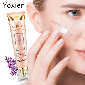 Yoxier Acne Scar Stretch Marks Remover Cream
