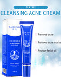 15ML Acne Treatment Blackhead Removal Anti Acne Cream