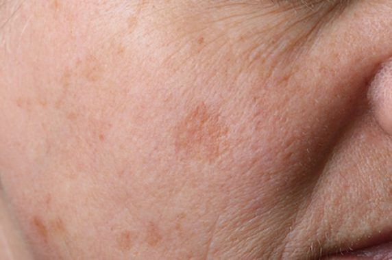 How to Treat Skin Impacted by Melasma