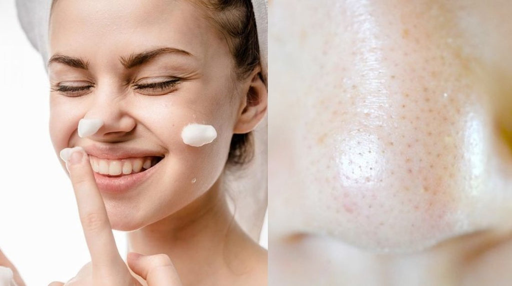 What Should I Do If My Pores Are Enlarged? | Lookhealthystore