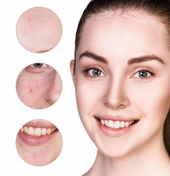 Share: Acne Skin Care Tips | Lookhealthystore