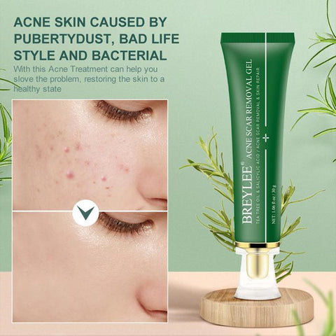 BREYLEE Tea Tree Acne Scar Removal Gel
