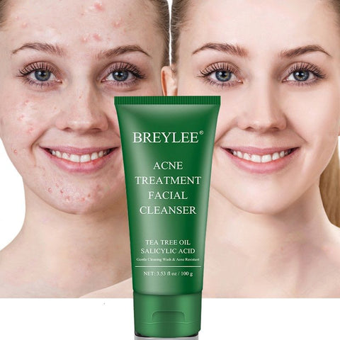 Acne Treatment Facial Cleanser