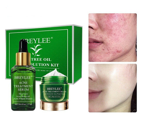 BREYLEE ACNE TREATMENT kit