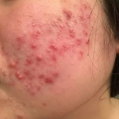 Red acne marks