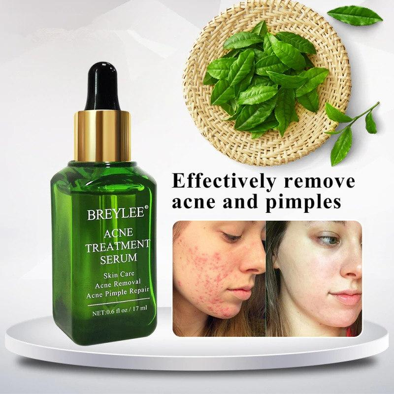 BREYLEE Acne Scar Removal Pimple Treatment Serum T235 - Lookhealthystore