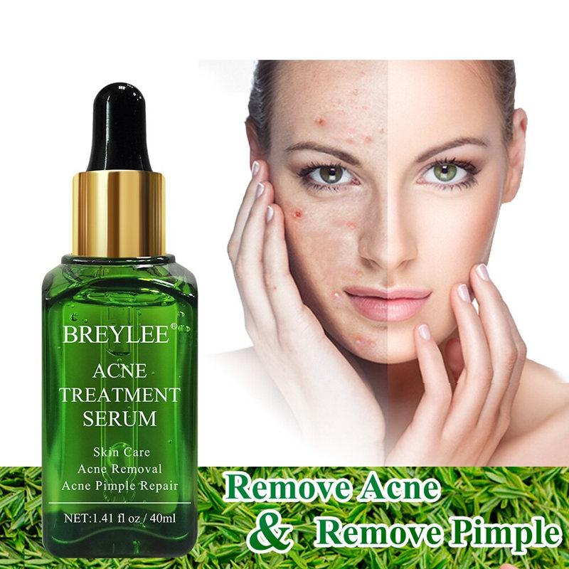 BREYLEE Acne Scar Removal Pimple Treatment Serum T252 - Lookhealthystore