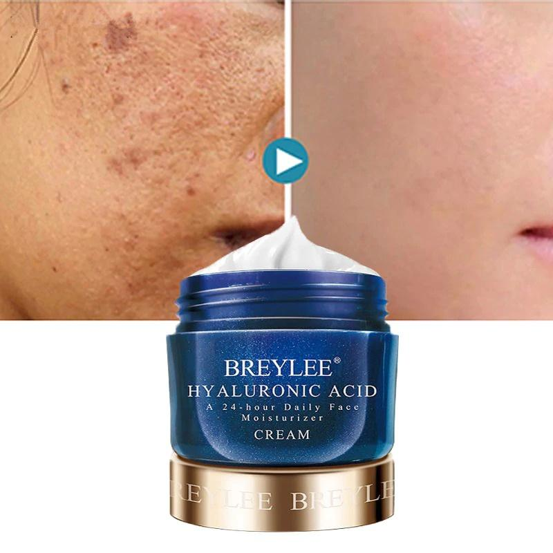 BREYLEE Hyaluronic Acid Moisturizer Face Cream T277 - Lookhealthystore