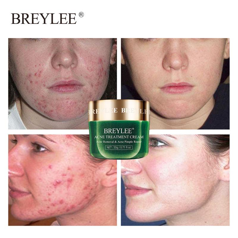 BREYLEE Tea Tree Acne Treatment Facial Cream T237 - Lookhealthystore