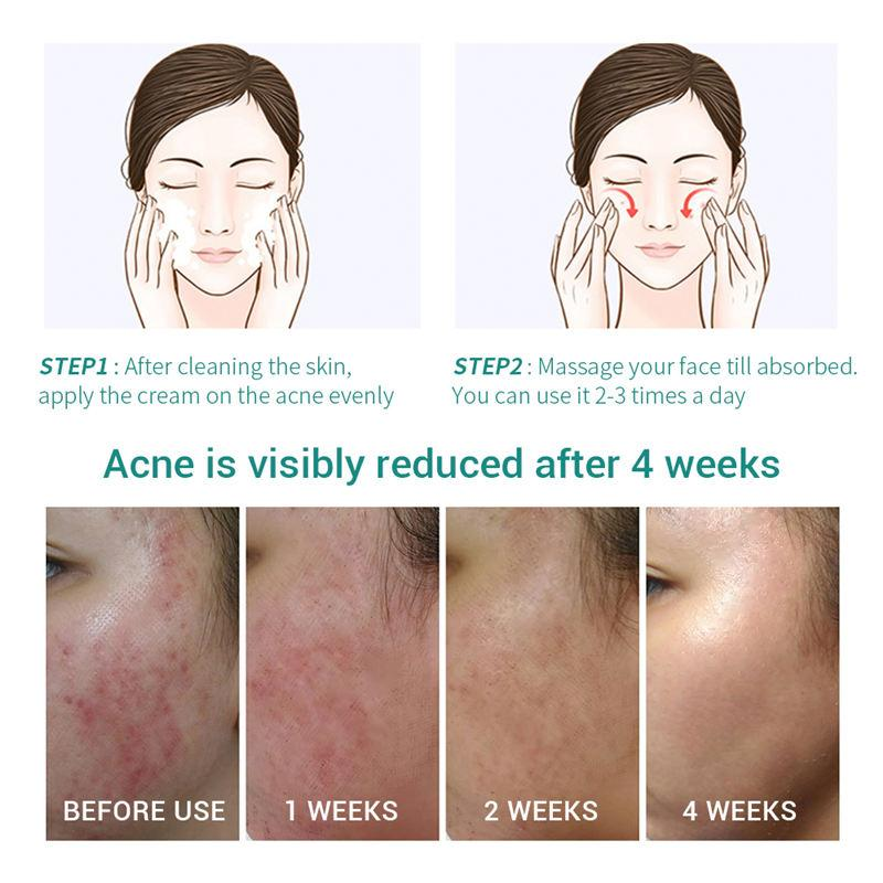 LANBENA Acne Treatment Fade Acne Scars Gel T188 - Lookhealthystore