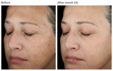 NEW: SKINMEDICA TNS ADVANCED + SERUM - THORNHILL SKIN CLINIC