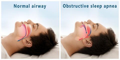 The difference between a normal airway and obstructive sleep apnea