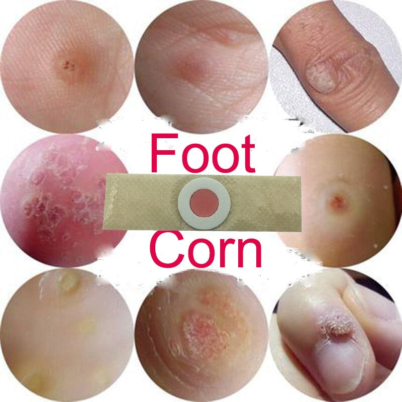 10pcs Foot Corn Removal Calluses Plaster For Relieving Pain