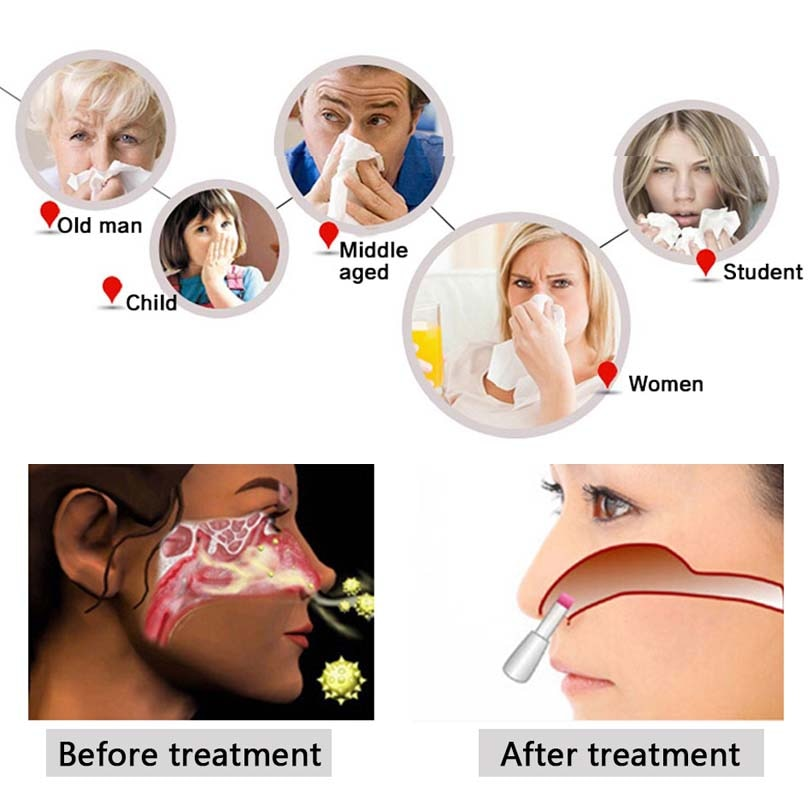 10pcs Nose Rhinitis Sinusitis Cure Therapy Massage Fever Low Frequency Pulse Laser BioNase Cleaning Machine