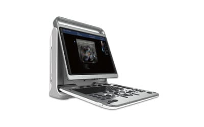 Chison EBit 50Vet  Color Doppler Veterinary Ultrasound