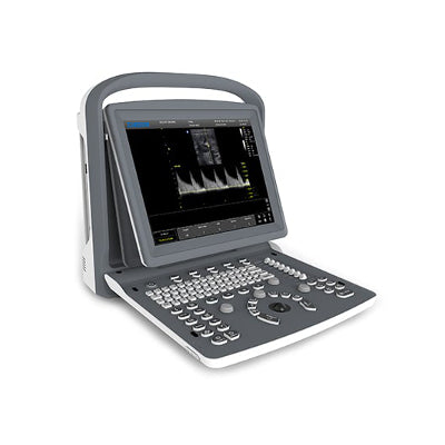 Chison ECO2Vet Portable Ultrasound | Affordable PW | KeeboVet