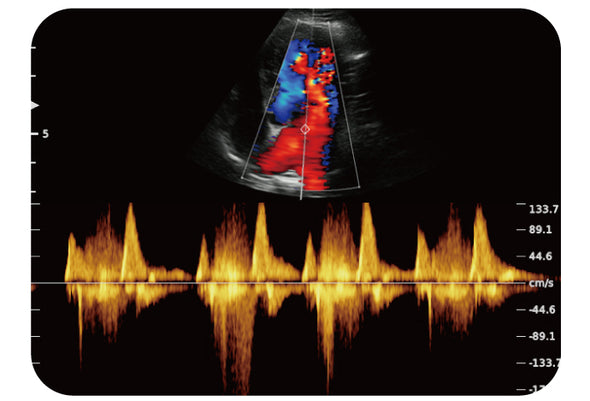 Chison ECO6Vet Color Doppler Ultrasound | Canine Cardiac CW Mode | KeeboVet