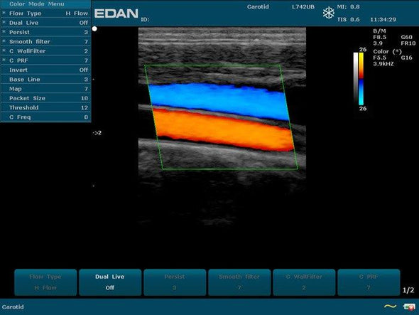 EDAN U50 Veterinary Ultrasound Model Sample Image
