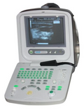 Chison Used Ultrasounds Used Chison 8300V