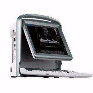 Chison ECO5 Vet On Sale,Color doppler,Chison,KeeboVet Veterinary Ultrasound Equipment.