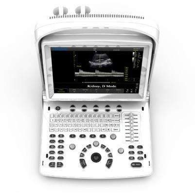 Chison ECO3 Vet Expert,Handheld ultrasounds,Chison,KeeboVet Veterinary Ultrasound Equipment.