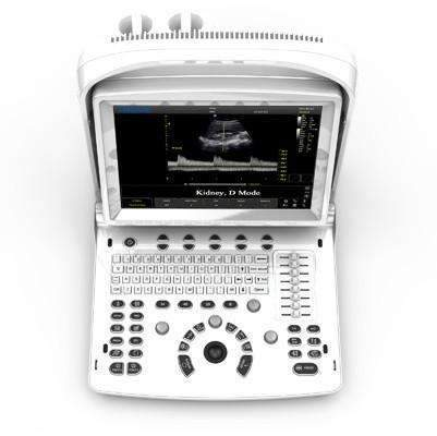 Chison ECO3 Vet,Portable Ultrasounds,Chison,KeeboVet Veterinary Ultrasound Equipment.