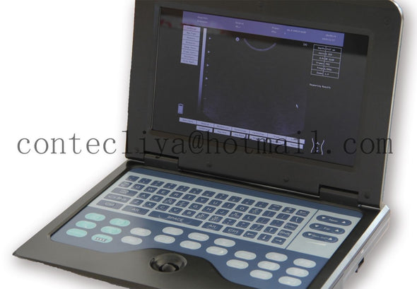 VET Veterinary portable Ultrasound Scanner Machine CMS600P2,7.5M Rectal Probe,CE 658126923446