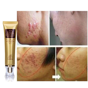 Acne Scar Removal Cream - shopaholicsonlyco