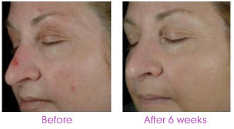 Before After photos Test of Sytenol A, a component of Revivinol Serum