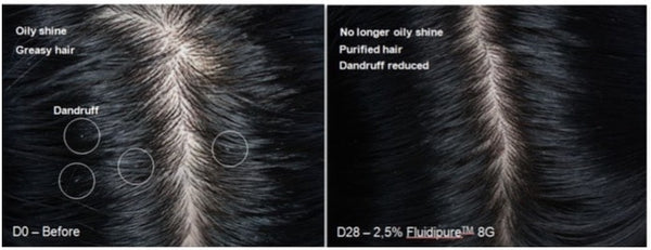 All about Fluidipure 8G in RevivScalp and RevivHair Stimulating Shampoo