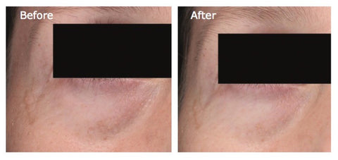 Undereye treatment with best skincare topical for skin luminosity