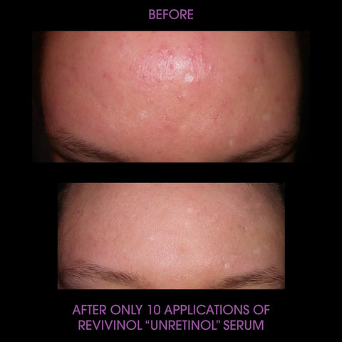 Before and after photos of alt-Retinol product cheaper bigger better than Biossance Squalane + Phyto-Retinol Serum