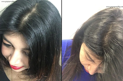 Before After photo 4.5-star rated product for hair fall and thinning