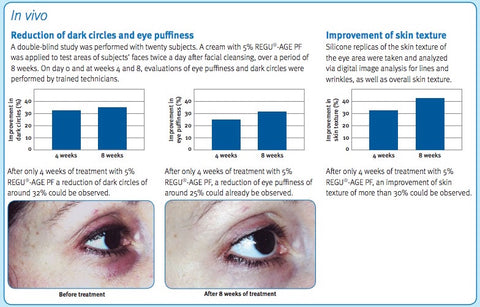 Before After photo of dark eye circles treated with REGU-AGE in TelomErase Serum