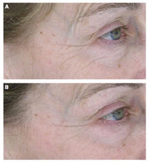 Sytenol A affect on wrinkles