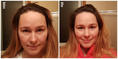 Before and after HA7X Multi-Molecular Serum, great results!