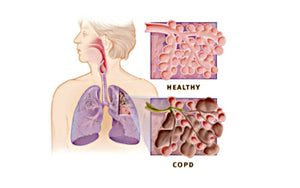 COPD and Whole Body Vibration Benefits