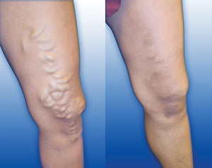 Preventing Varicose Veins with Whole Body Vibration Machines