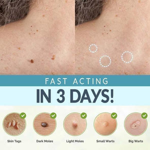 Skin Tag Removing Patches