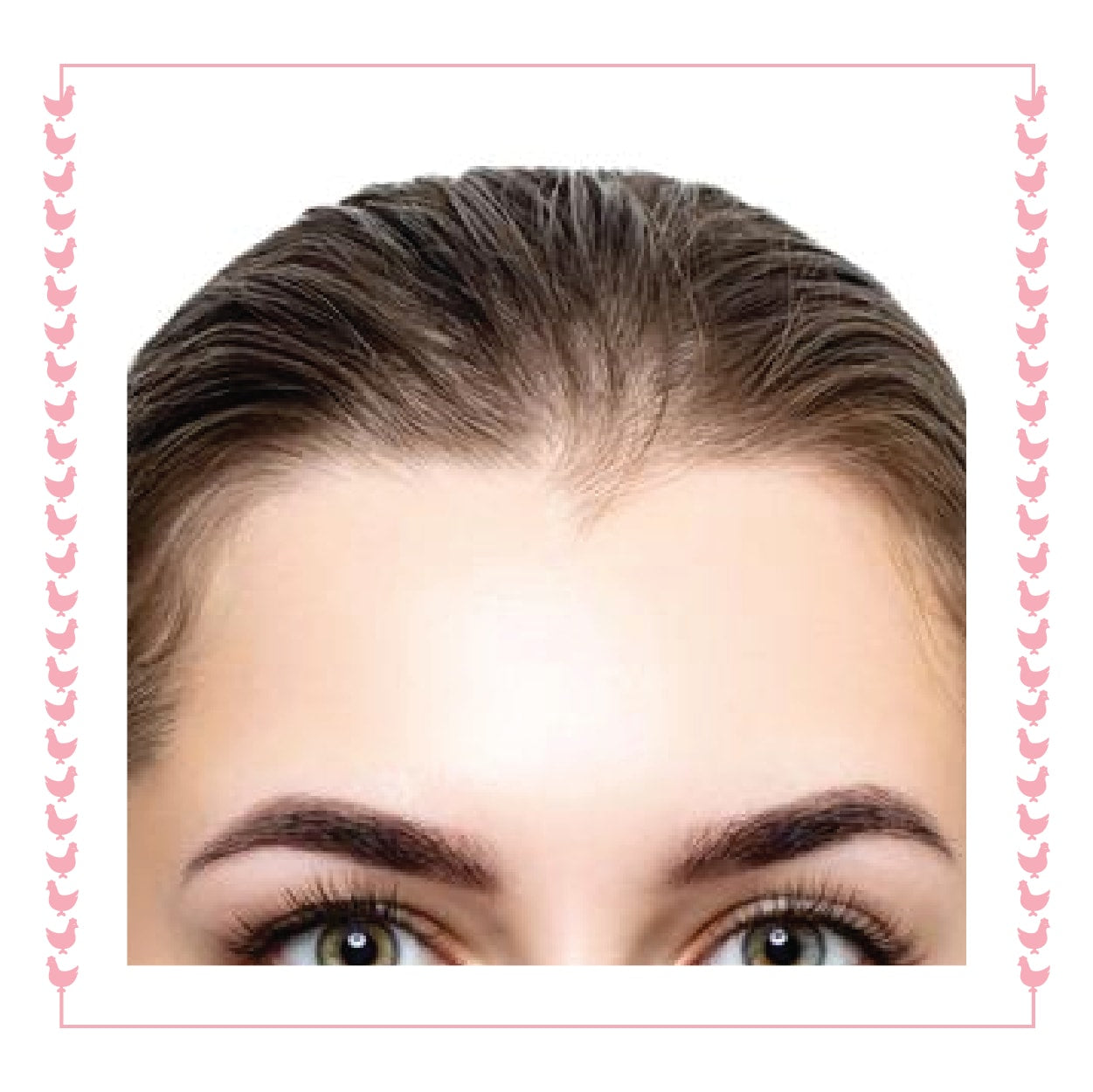 Forehead Laser - Single Session